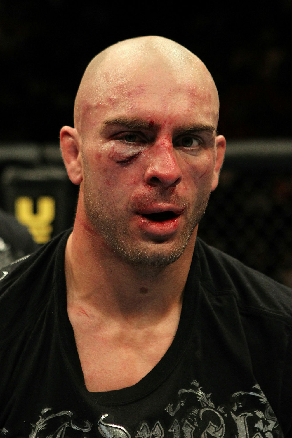 UFC 124: Sean Pierson after his fight against Matt Riddle.