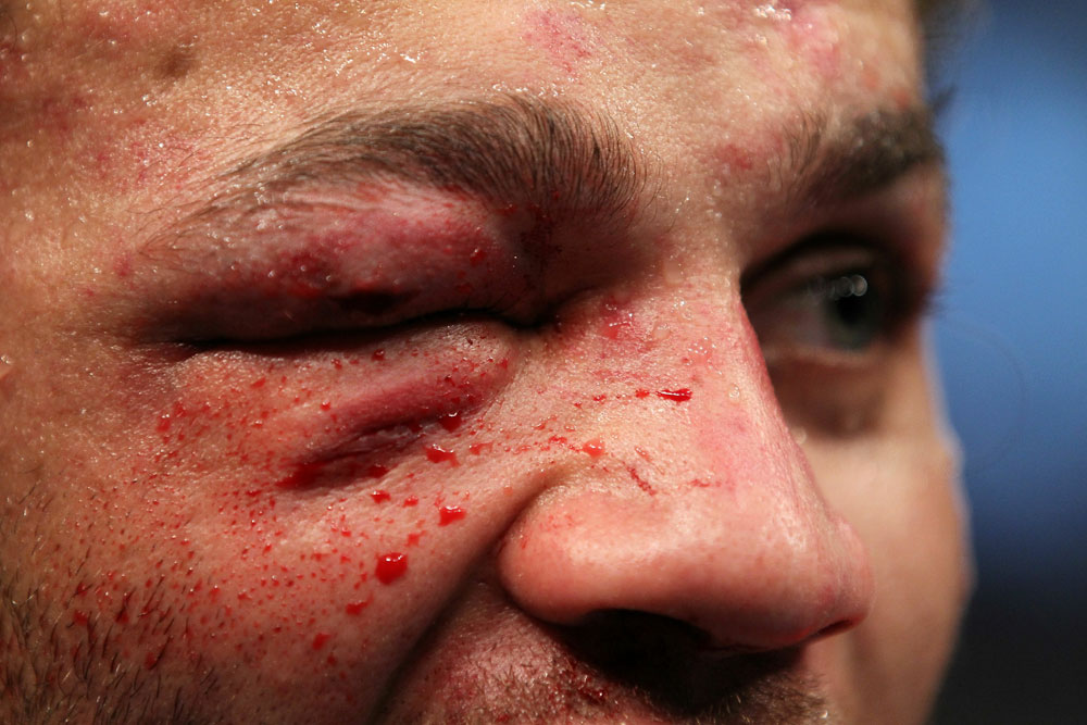 UFC 124: Josh Koscheck&#39;s Right eye