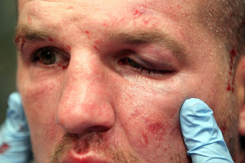 UFC 133: Matt Hamill