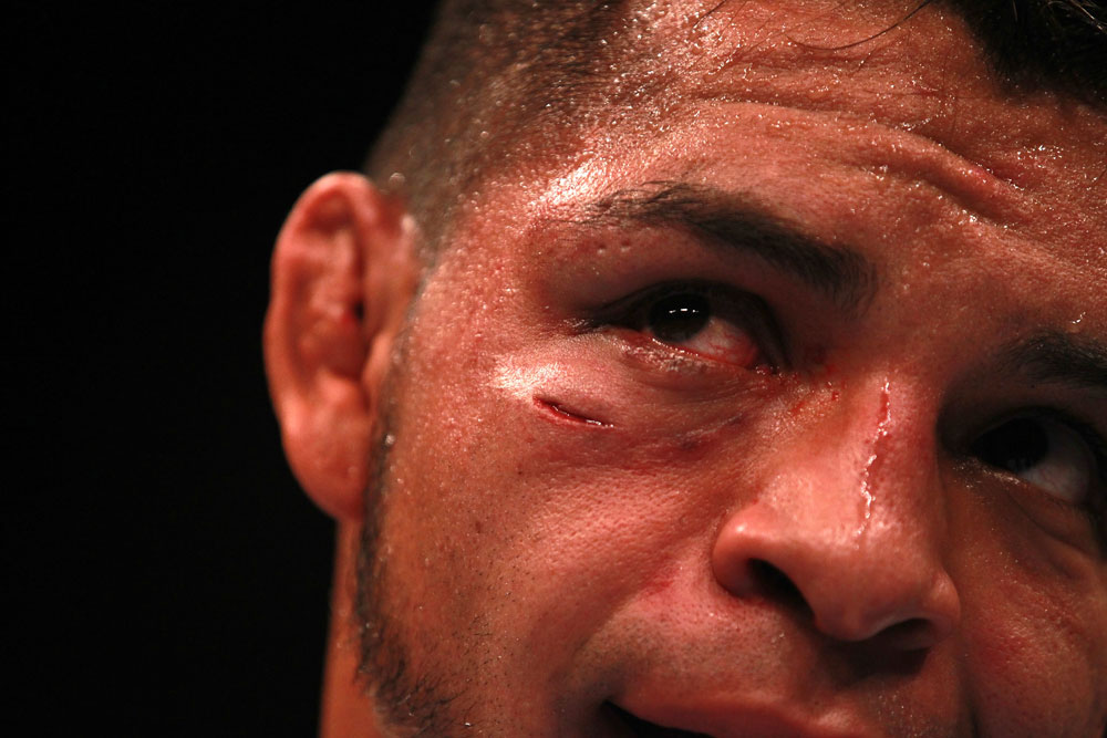 Leonard Garcia after the fight