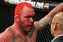 Chris Leben after the fight