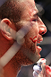 TORONTO, ON - DECEMBER 10:  John Makdessi reacts after suffering a defeat to Dennis Hallman during the UFC 140 event at Air Canada Centre on December 10, 2011 in Toronto, Ontario, Canada.  (Photo by Nick Laham/Zuffa LLC/Zuffa LLC via Getty Images)