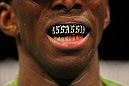 LAS VEGAS, NV - DECEMBER 30:  Anthony Njokuani shows his mouthpiece during the UFC 141 event at the MGM Grand Garden Arena on December 30, 2011 in Las Vegas, Nevada.  (Photo by Donald Miralle/Zuffa LLC/Zuffa LLC via Getty Images) *** Local Caption *** Anthony Njokuani