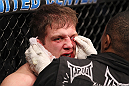 CHICAGO, IL - JANUARY 28:  Nik Lentz is treated for a cut during his bout against Evan Dunham during the UFC on FOX event at United Center on January 28, 2012 in Chicago, Illinois.  (Photo by Nick Laham/Zuffa LLC/Zuffa LLC via Getty Images) *** Local Caption *** Nik Lentz