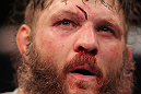 LAS VEGAS, NV - FEBRUARY 04:  Roy Nelson displays his cut from his fight with Fabricio Werdum during the UFC 143 event at Mandalay Bay Events Center on February 4, 2012 in Las Vegas, Nevada.  (Photo by Nick Laham/Zuffa LLC/Zuffa LLC via Getty Images) *** Local Caption *** Roy Nelson