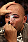 LOS ANGELES, CA - AUGUST 04:  Brandon Vera is checked out by medical staff after being defeated by Shogun Rua in the fourth round during the UFC on FOX at Staples Center on August 4, 2012 in Los Angeles, California.  (Photo by Josh Hedges/Zuffa LLC/Zuffa LLC via Getty Images)