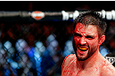 MONTREAL, QC - NOVEMBER 17:  A cut and bloodied Carlos Condit reacts after a round against Georges St-Pierre in their welterweight title bout during UFC 154 on November 17, 2012  at the Bell Centre in Montreal, Canada.  (Photo by Josh Hedges/Zuffa LLC/Zuffa LLC via Getty Images)