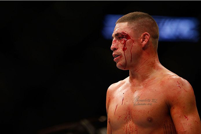 HOUSTON, TEXAS - OCTOBER 19:  Diego Sanchez looks on during his fight against Gilbert Melendez (not pictured) in their UFC lightweight bout at the Toyota Center on October 19, 2013 in Houston, Texas. (Photo by Josh Hedges/Zuffa LLC/Zuffa LLC via Getty Images)