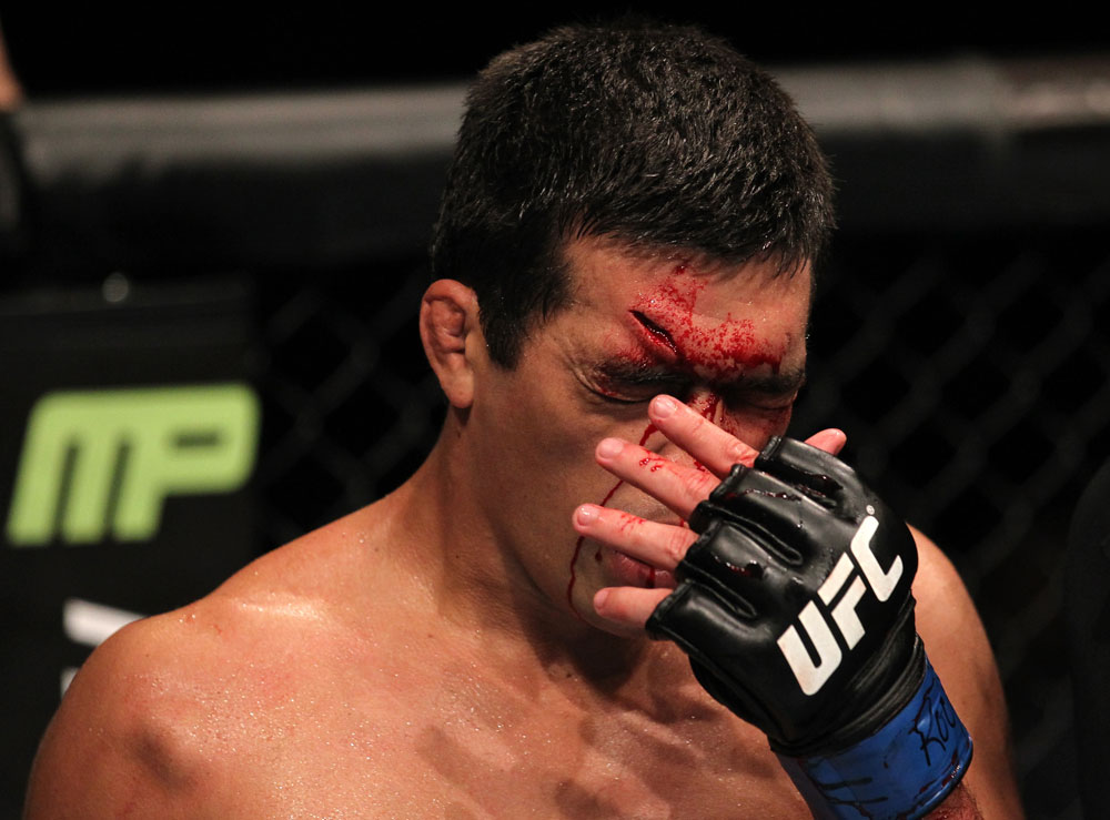TORONTO, ON - DECEMBER 10:  Lyoto Machida wipes blood from his face during his bout agaisnt Jon Jones during the UFC 140 event at Air Canada Centre on December 10, 2011 in Toronto, Ontario, Canada.  (Photo by Nick Laham/Zuffa LLC/Zuffa LLC via Getty Images)