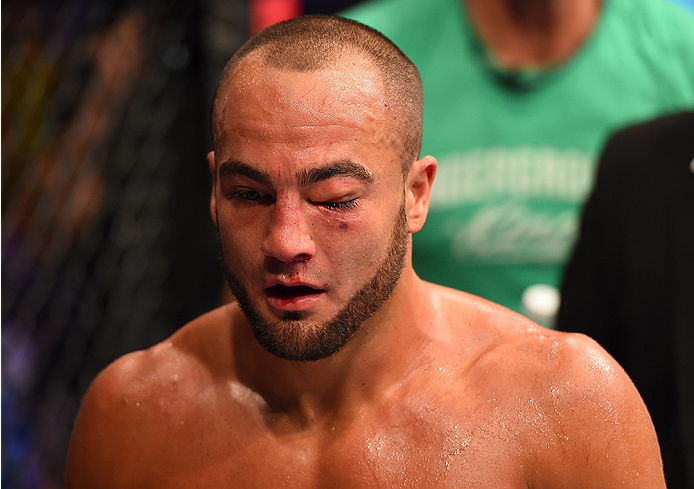 MEXICO CITY, MEXICO - JUNE 13: (L-R) Eddie Alvarez of the United States has his eye swell up in between rounds while facing Gilbert Melendez of the United States in their lightweight bout during the UFC 188 event at the Arena Ciudad de Mexico. (Photo by Josh Hedges/Zuffa LLC)