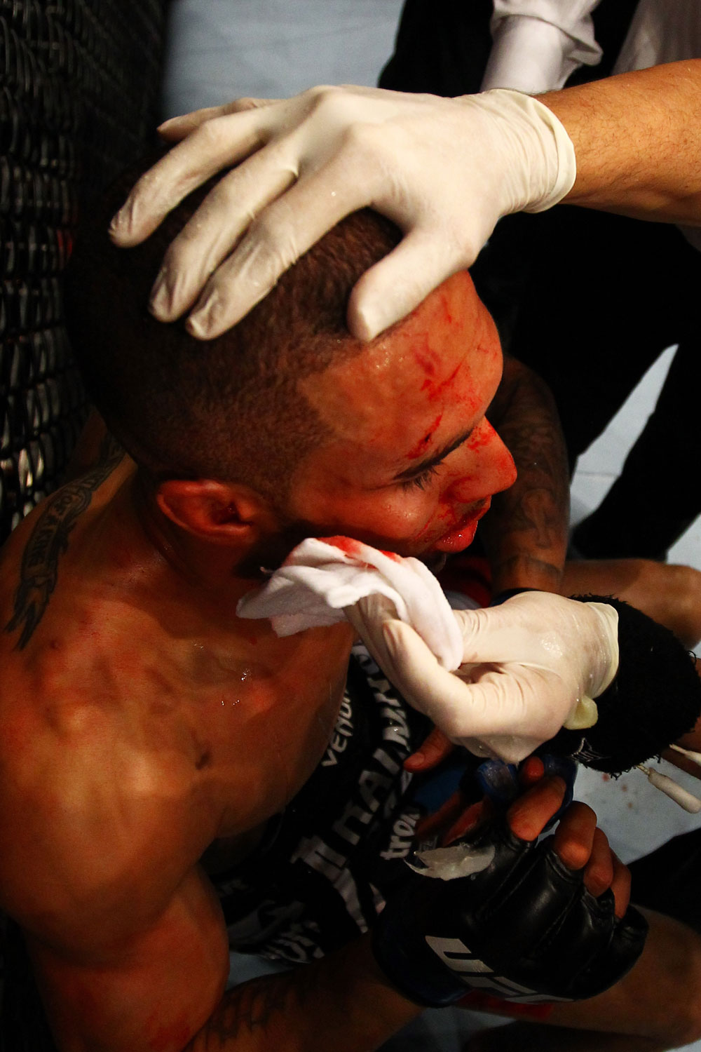ATLANTA, GA - APRIL 21:  Che Mills recieves medical attention during his welterweight bout against Rory MacDonald for UFC 145 at Philips Arena on April 21, 2012 in Atlanta, Georgia.  (Photo by Al Bello/Zuffa LLC/Zuffa LLC via Getty Images)