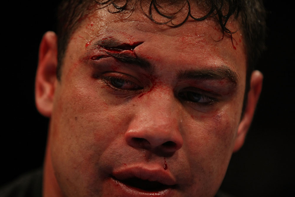 LAS VEGAS, NV - MAY 26:  A closeup of Shane Del Rosario&#39;s face during a heavyweight bout at UFC 146 at MGM Grand Garden Arena on May 26, 2012 in Las Vegas, Nevada.  (Photo by Donald Miralle/Zuffa LLC/Zuffa LLC via Getty Images)