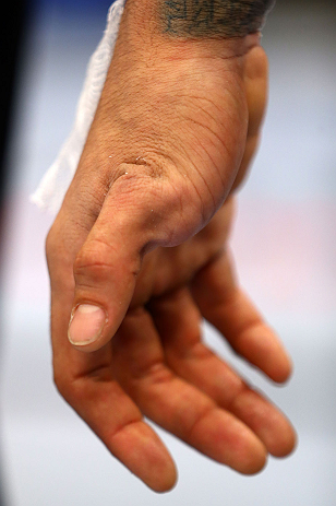 NEWARK, NJ - APRIL 27:  The injured hand of Yancy Medeiros is seen after his lightweight bout against Rustam Khabilov of Russia during the UFC 159 event at the Prudential Center on April 27, 2013 in Newark, New Jersey.  (Photo by Al Bello/Zuffa LLC/Zuffa LLC Via Getty Images)