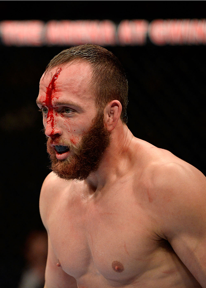 DULUTH, GA - JANUARY 15: Trevor Smith is bloodied against Brian Houston in their middleweight fight during the UFC Fight Night event inside The Arena at Gwinnett Center on January 15, 2014 in Duluth, Georgia. (Photo by Jeff Bottari/Zuffa LLC/Zuffa LLC via Getty Images)