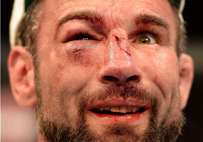 BALTIMORE, MD - APRIL 26:  Isaac Vallie-Flagg reacts after the conclusion of his lightweight bout against Takanori Gomi during the UFC 172 event at the Baltimore Arena on April 26, 2014 in Baltimore, Maryland. (Photo by Patrick Smith/Zuffa LLC/Zuffa LLC via Getty Images)