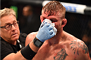 HOUSTON, TX - OCTOBER 03:  Alexander Gustafsson gets his nose checked while facing Daniel Cormier in their UFC light heavyweight championship bout during the UFC 192 event at the Toyota Center on October 3, 2015 in Houston, Texas. (Photo by Josh Hedges/Zuffa LLC/Zuffa LLC via Getty Images)